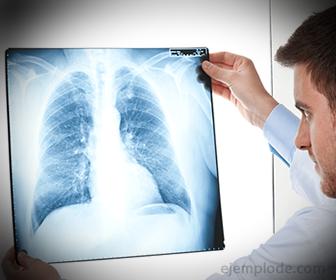 Radiografia, producto de los Rayos X