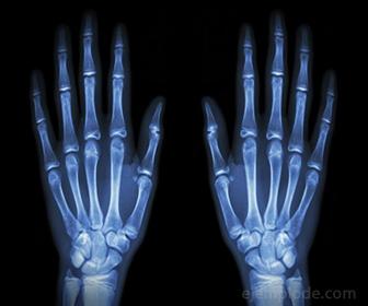 Radiografia producto de Rayos X