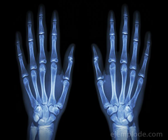 Efecto de los rayos X sobre una placa para generar una Radiografia