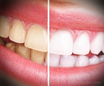 Ejemplo de uso de Bicarbonato, Limpieza dental